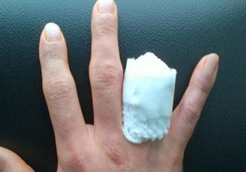 Одесситка потеряла часть пальца во время конфликта с незнакомцем